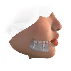When few adjacent teeth are missing or badly damaged, multiple dental implants may be placed to support an implantsupported bridge. This advantageous alternative avoids the hassle involved with the use of partial dentures. It makes the use of metallic clasps unnecessary, resulting in better esthetics, and causes no harm to adjacent teeth. The result is a more convenient solution that enhances quality of life while keeping your teeth healthy.