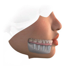Patients with a completely edentulous jaw can now avoid the hassle associated with removable dentures. Supported by eight or more implants, a fixed restoration (a bridge) is the ultimate solution for those who wish to improve their chewing ability and enjoy better quality of life.